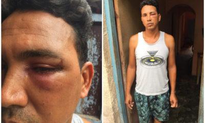 Pescador cubano sufre una golpiza por parte de guardacostas en Matanzas