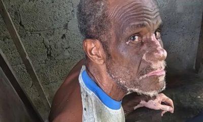 Adultos mayores en Guantánamo denuncian que viven sin techo y olvidados por el Gobierno